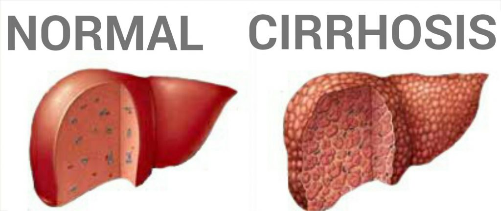 Cirrhosis of Liver